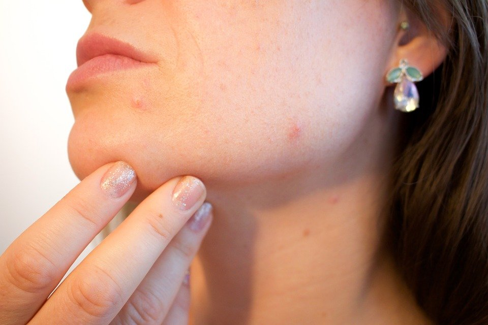 Preliminary Research Claims CBD Could Help Treat Acne